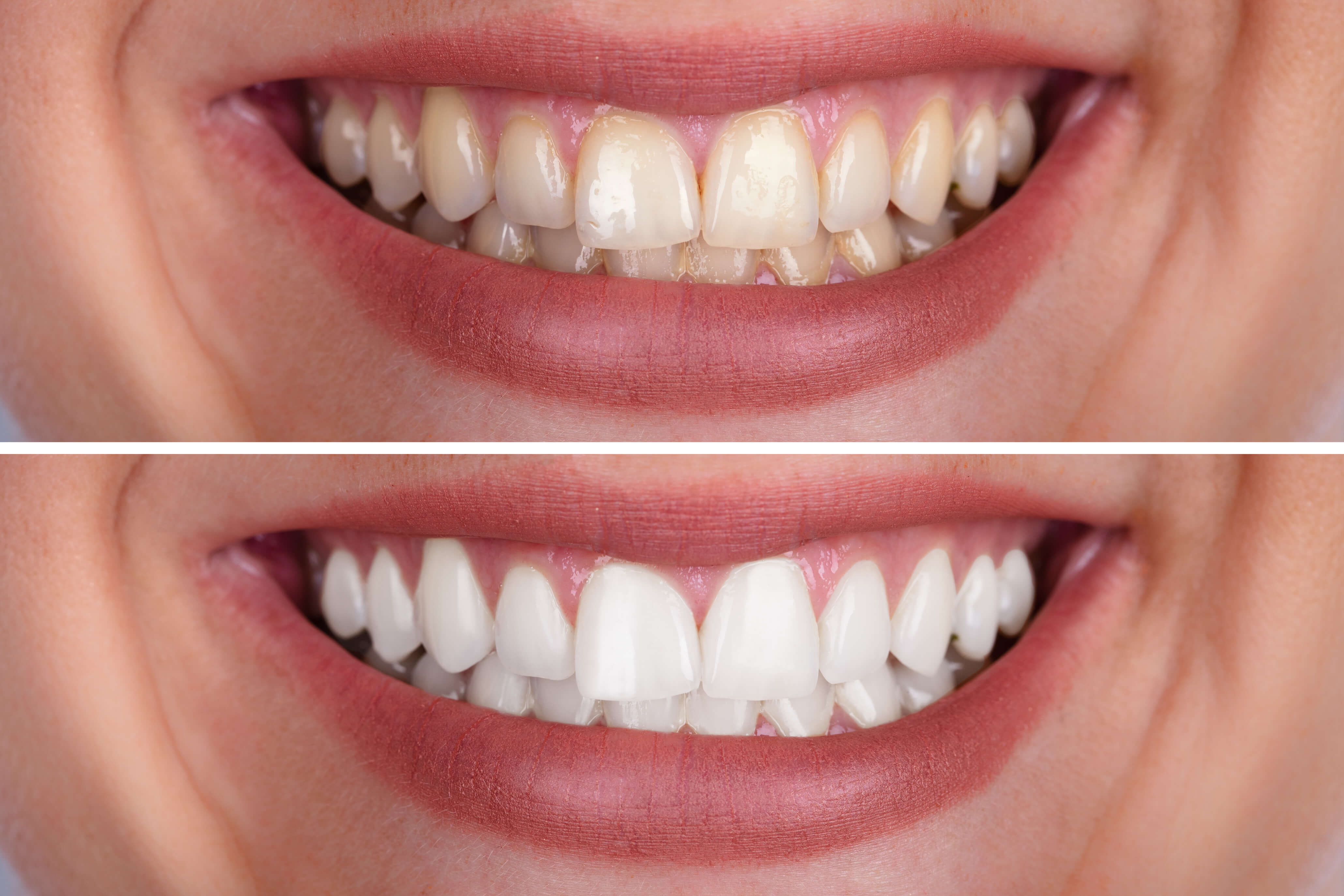 Diy Tooth Whitening Vs Professional Teeth Whitening Bonham Dental